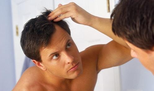 دوره آموزش ترمیم موی مردانه